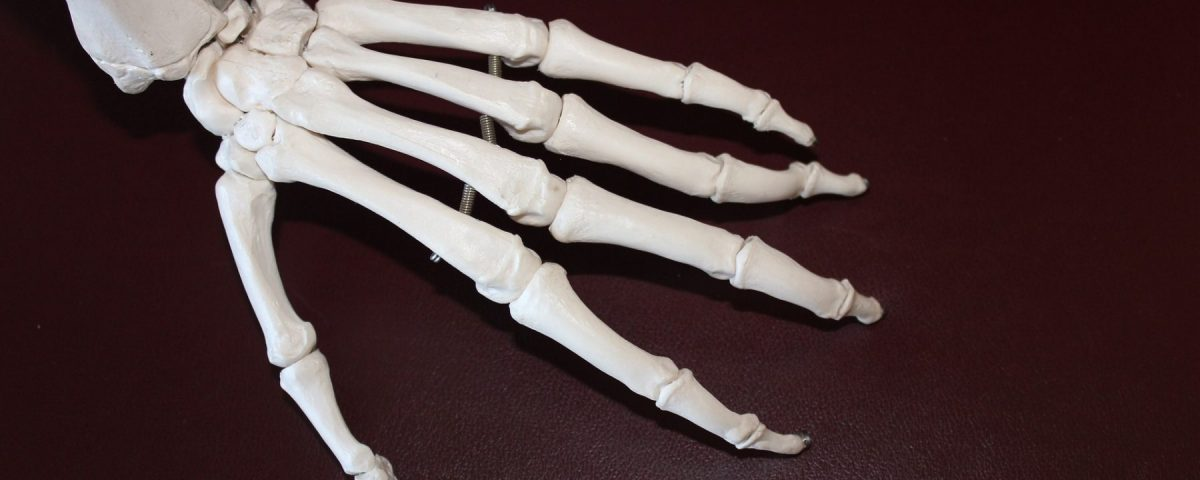 Are Disability Benefits Offered for Musculoskeletal Conditions?