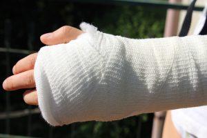 When Do Soft Tissue Injuries Qualify for Benefits?