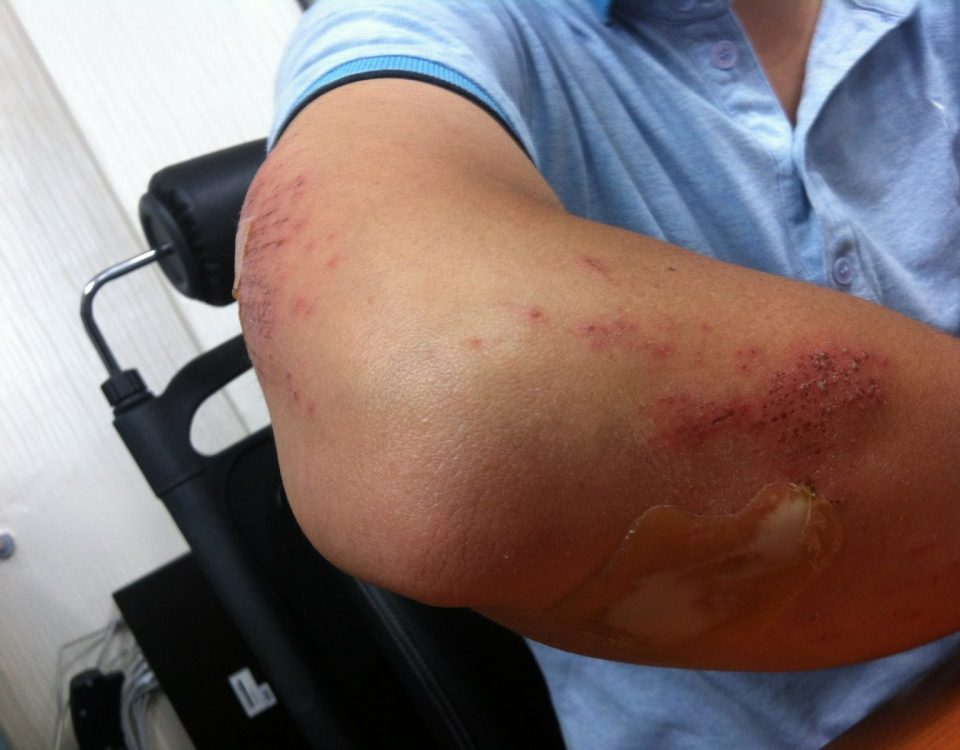 What Skin Conditions Are Covered by Disability Benefits?